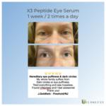 X3 Eye Testimonial