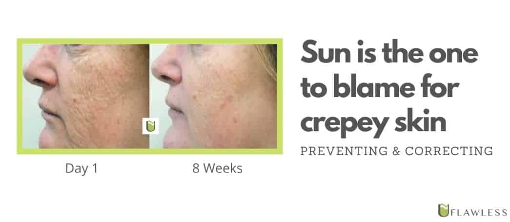 Sun is the one to blame for crepey skin...