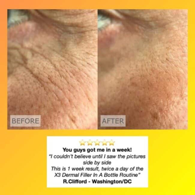 Dermal Filler in a Bottle 1 week results