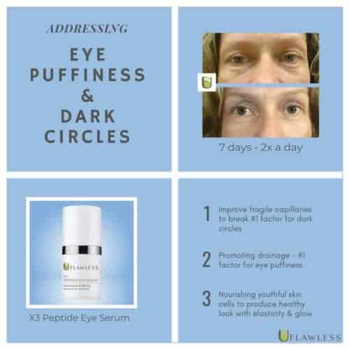 Addressing Eye Puffiness & Dark Circles