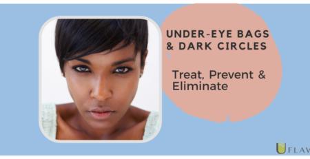 Under eye bags & Dark Circles - Treat, Prevent & Eliminate